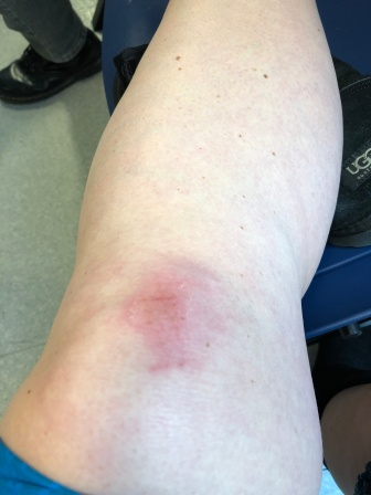 Grazed knee